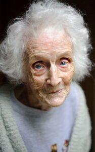 مراقبت از خشکی چشم در سالمندان
