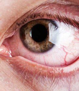 علل خشکی چشم در سالمندان