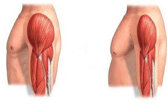 عضلات و سارکوپنی در سالمندان