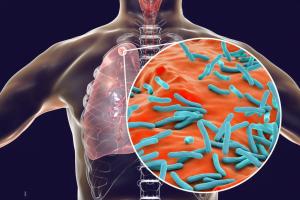 بیماری سل چیست و روش های مراقبت از فرد مبتلا چگونه است