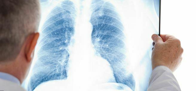 علل بروز سرطان ریه در سالمندان و روش های کنترل و درمان آن چگونه است ؟
