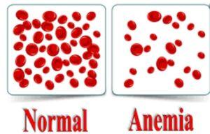 علل کم خونی در سالمندان