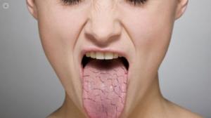 سندروم شوگرن چیست و راه های مراقبت از بیمار مبتلا به این سندرم چگونه است