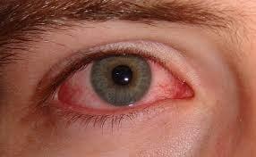 خستگی چشم در سندرم شوگرن