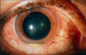 مشکلات چشمی در بیماری بهجت