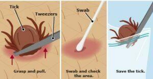 برداشتن کنه برای بیماری لایم در کودکان