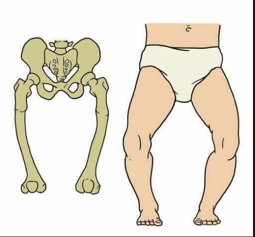 انواع نرمی استخوان در کودکان