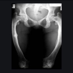 تشخیص نرمی استخوان در کودکان
