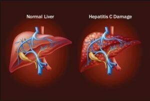 علایم هپاتیت C