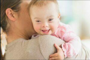 مشکل بینایی نوزاد مبتلا به سندرم داون