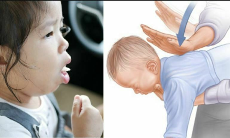 علت خفگی در نوزاد