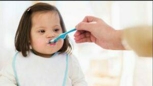 تغذیه نوزاد مبتلا به سندرم داون
