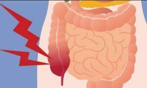 درمان تجمع گاز در شکم