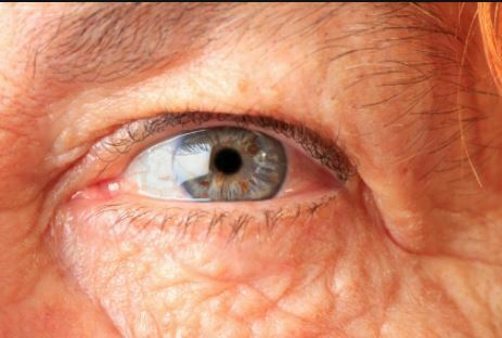 انواع تخریب لکه زرد چشم