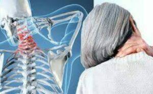 عامل آرتروز گردن
