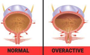 علایم مثانه بیش فعال