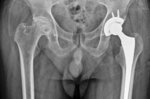 تشخیص لزوم تعویض مفصل ران