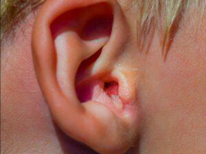 تشخیص بیماری گوش شناگر