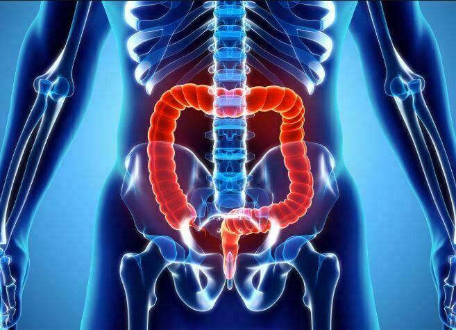 هر انچه که لازم است در مورد بیماری پانکولیت بدانید