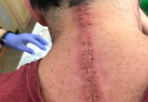 راههای درمان گردن درد