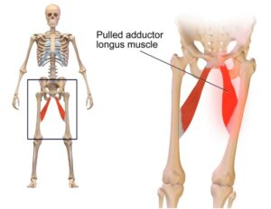 کشیدگی عضله کشاله ران