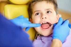 دندان های زرد و دندانپزشکی