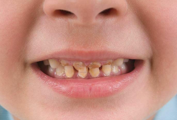 علت دندان های زرد