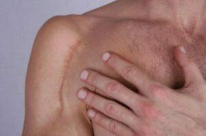 درمان اسکار و جای زخم
