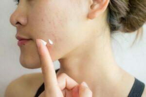 درمان اسکار و ضد آفتاب