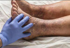 علل اگزما در سالمندان