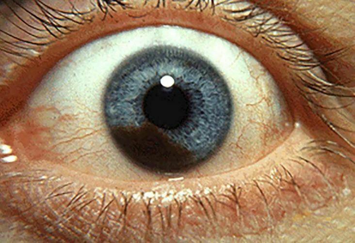 انواع ملانومای چشم