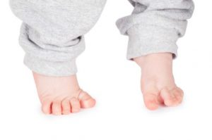 تشخیص راه رفتن روی پنجه پا