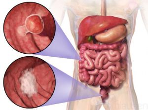 علایم سرطان روده بزرگ