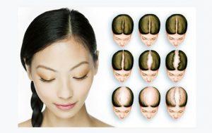الگوی ریزش مو در زنان