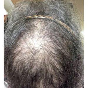 ریزش مو در زنان یائسه
