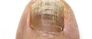 علایم عفونت قارچی ناخن