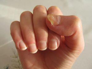 عوارض عفونت قارچی ناخن